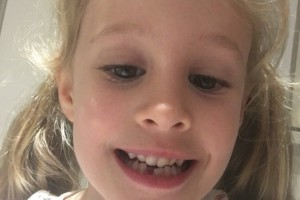 2nd Tooth Lost